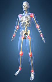 Las articulaciones sufren severos daños al ser atacadas por el chikungunya.