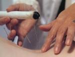 acupuntura y moxi