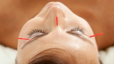 acupunturacara